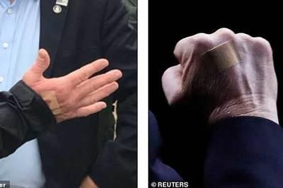 Miếng băng vết thương trên tay ông Trump gây xôn xao