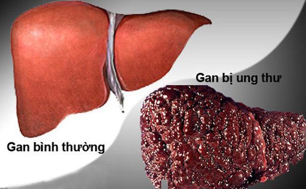 ung thư gan,nguyên nhân ung thu gan