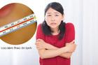 Những triệu chứng 'tố cáo' bạn có thể bị sỏi thận