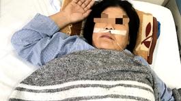 Người phụ nữ 48 tuổi tức ngực, đi khám phát hiện u to