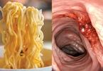 Cảnh báo thói quen ăn uống từ cô gái 27 tuổi bị ung thư dạ dày giai đoạn cuối