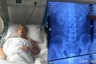 Người đàn ông bị đau lưng, đi khám phát hiện có 4 quả thận