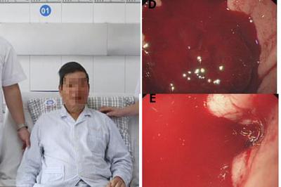 Quý ông nôn ra cả vũng máu vì loại đồ uống triệu người mê mẩn