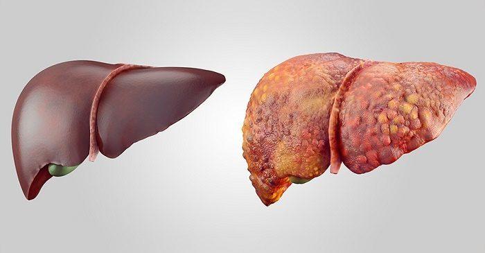 5 triệu chứng trên cơ thể báo hiệu bệnh xơ gan đang đến rất gần