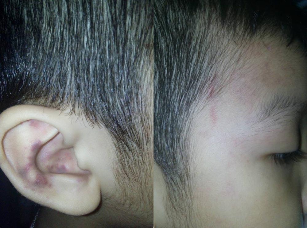 Đi học về bé trai 5 tuổi bầm tím tai, nghi bị đánh