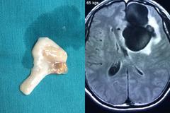 Mê tiết canh, nam thanh niên bị sán làm tổ to trong não