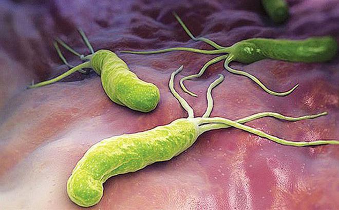 ung thư dạ dày,viêm loét dạ dày,vi khuẩn HP
