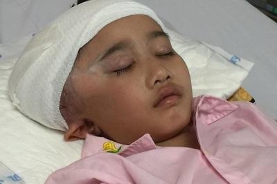 Phẫu thuật u não 4 lần, bé gái 10 tuổi đối diện hiểm nguy