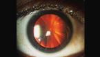 Kỳ lạ người phụ nữ có đôi mắt như chiếc bánh pizza cắt lát