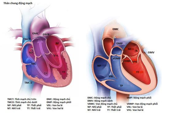 tim bẩm sinh,kỹ thuật mổ tim
