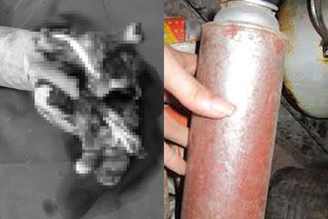 Ăn lẩu bằng bếp gas mini, nhiều người bị nổ nát tay