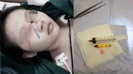 Tai nạn cận Tết: Bút chì cắm vào mắt, bé gái thoát chết trong gang tấc