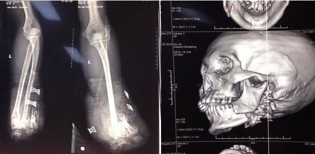 Nam thanh niên Hải Phòng bị pháo nổ bay 2 bàn tay