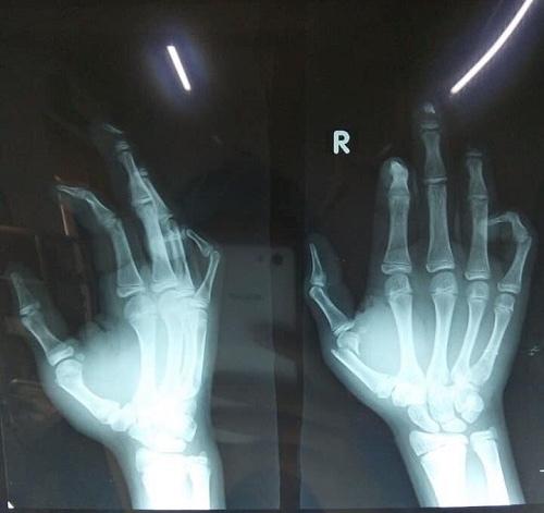 Một học sinh bị nát bàn tay do đốt pháo tự chế