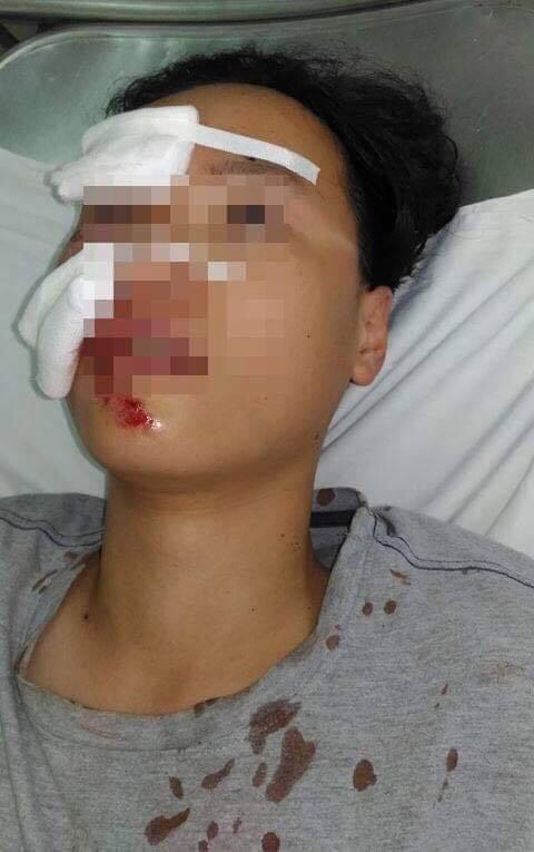 Một gia đình nghi bị cướp khi ngủ trên xe gần trạm thu phí ở Bình Thuận