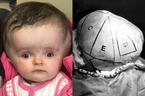 Bé gái 2 tuổi có đầu lớn hơn cơ thể được mổ gọt bớt đầu
