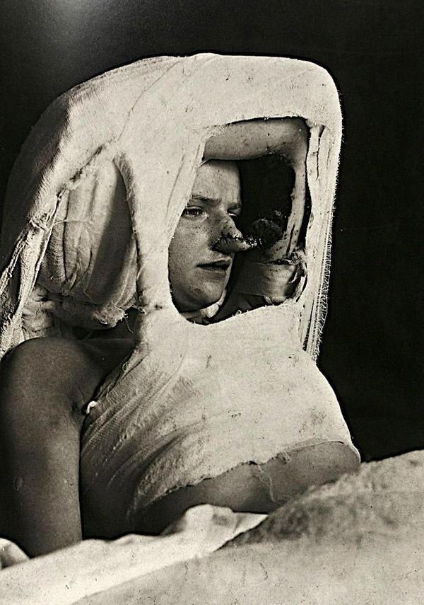 9 hình ảnh y học cổ xưa gây ám ảnh người xem