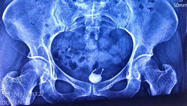 Chiếc vòng thai 31 năm đi lạc vào bàng quang người phụ nữ