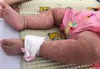 Dân tẩy chay vắc xin, dịch sởi bùng phát gấp 14 lần