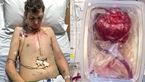 Người đàn ông sống sót nhờ trái tim tự đập trong hộp nhựa
