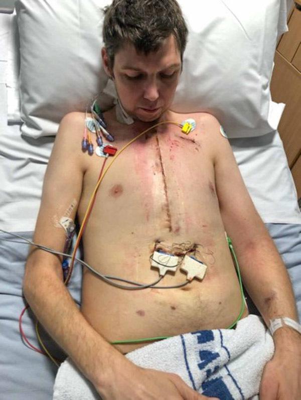 phẫu thuật tim,ghép tim