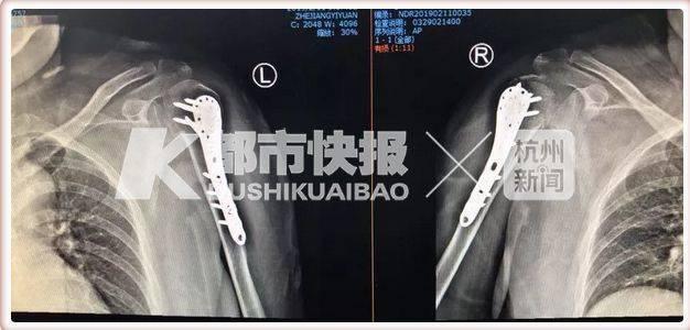 bệnh loãng xương,phong thấp