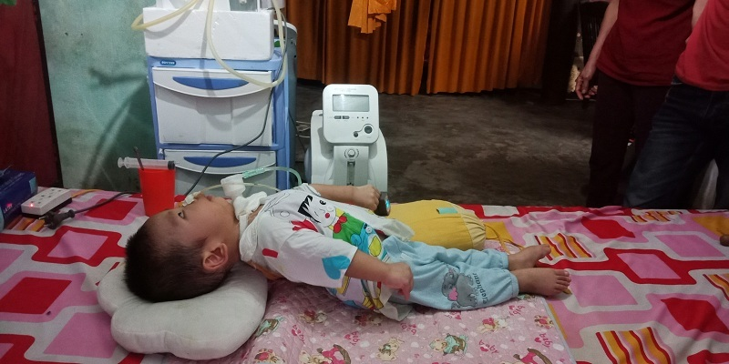 Xót xa bé trai 1 tuổi gồng cứng người vì di chứng bại não