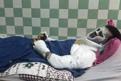 Bộ Công an vào cuộc điều tra kẻ tạt axit, cắt gân chân Việt kiều