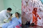 Đang làm việc, quý ông 40 đột ngột ngã quỵ do căn bệnh chết sau ung thư