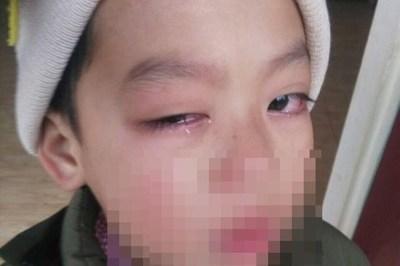 Nghi vấn học sinh lớp 1 chấn thương mắt do bị cô chủ nhiệm đánh