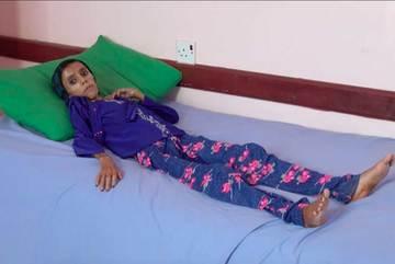 'Bộ mặt' ám ảnh của cuộc chiến ở Yemen