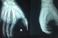 Chàng trai đứt lìa ngón tay do tai nạn từ 'trên trời rơi xuống'