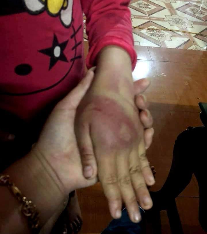 Thanh Hóa: Bé gái lớp 2 bị bố dùng roi tre đánh tím khắp người