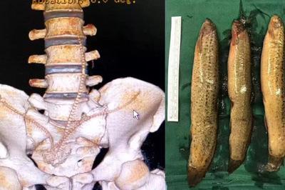 Bác sĩ bất ngờ vì người đàn ông tự nhét 3 con cá vào hậu môn