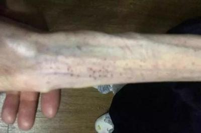 Cánh tay tong teo gây ám ảnh của cô gái trẻ sau 6 tháng giảm cân
