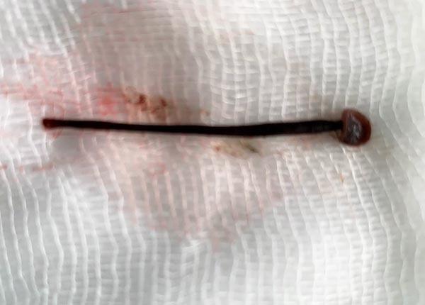 Rửa mặt ở suối, nữ sinh viên bị con đỉa dài 4cm chui vào mũi