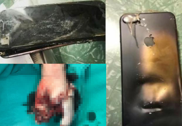 Dùng iPhone khi đang sạc, bé trai 13 tuổi bị nổ tung tay