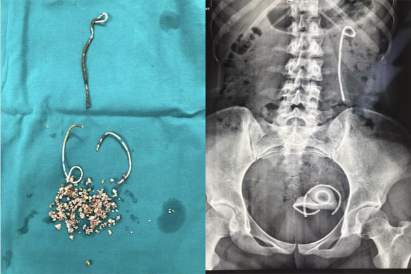 Cô gái Hà Nội bỏ quên stent 30cm trong bụng suốt 5 năm
