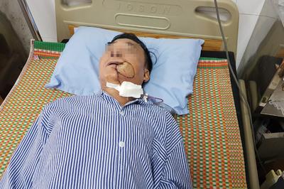 Tưởng bị nhiệt miệng, người đàn ông Hà Nội phải cắt 1 góc má vì ung thư