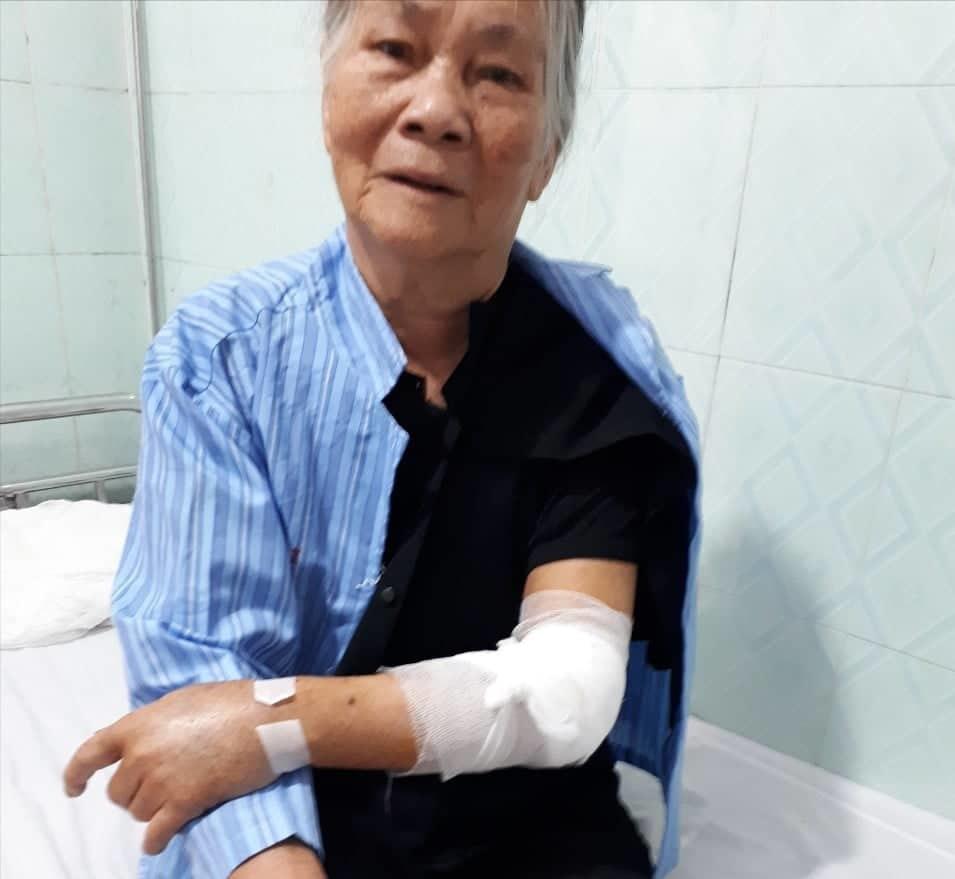 Cụ bà 79 tuổi ở Hà Tĩnh bị 2 con chó béc giê cắn 30 vết