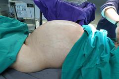 Nam thanh niên Vĩnh Phúc mắc ung thư mỡ, khối u 25kg