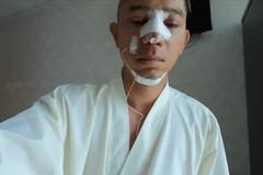 Lương Bằng Quang công khai phẫu thuật thẩm mỹ gương mặt sau 1 ngày