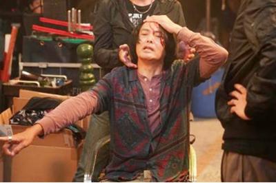 Châu Nhuận Phát bị đánh chảy máu đầu trên phim trường, nhập viện khâu 5 mũi