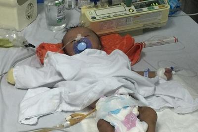 Bụng phình to do bệnh bẩm sinh, bé trai 3 tháng tuổi cầu cứu