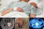 Nam sinh 18 tuổi ở Nghệ An mắc 3 bệnh ung thư cùng lúc