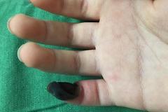 Bé 6 tuổi tự lên mạng mua thuốc chữa mụn cóc đã bị hoại tử ngón tay