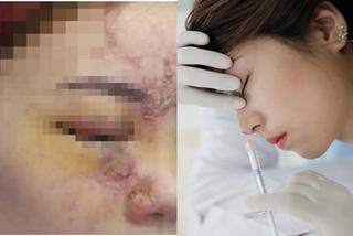 Tiêm filler nâng mũi, cô gái 27 tuổi mù 1 mắt
