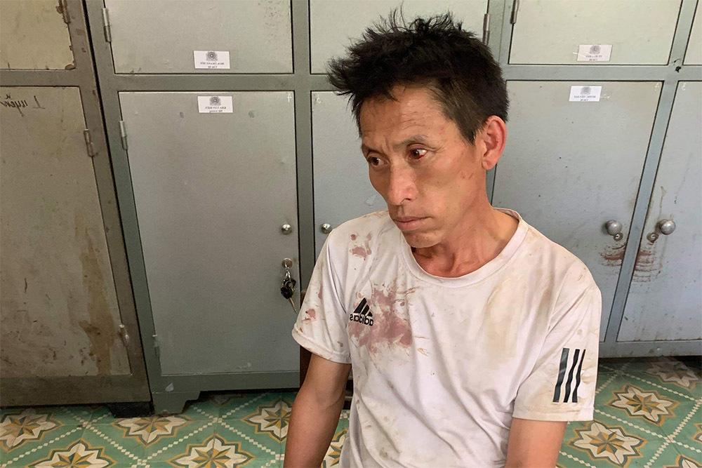 Trung úy công an bị đánh gãy răng lúc bắt ma túy