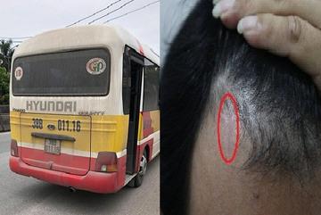 Nữ hành khách bị đánh giập mũi: Tài xế xe 'dù' từng hành hung đồng nghiệp