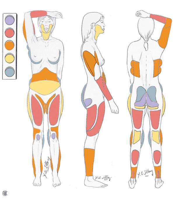 Kết cục bi thảm của vũ công, người phẫu thuật hút mỡ đầu tiên trong lịch sử